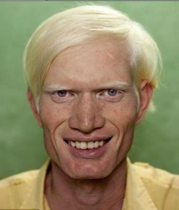 Image result for black albinos